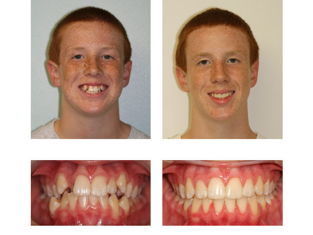 before after milford ma milford orthodontics